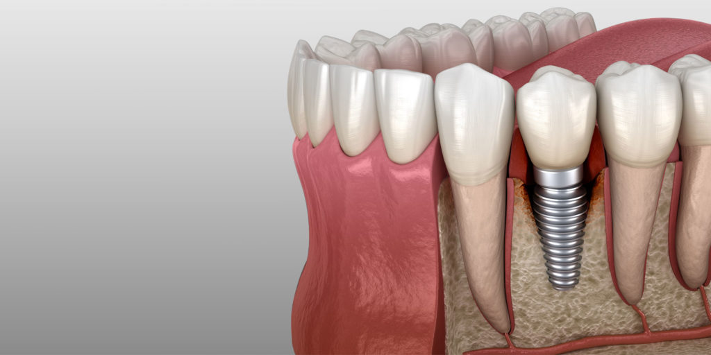 dental implant model seattle wa