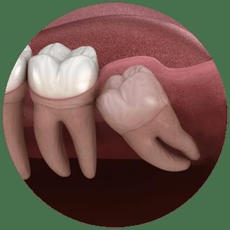 wisdom teeth model seattle wa